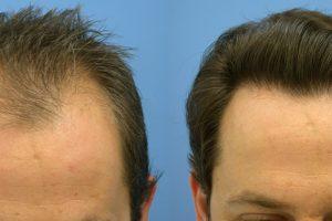 الأسباب والعوامل المؤدية إلى فشل زراعة الشعر