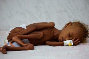 منسق الأمم المتحدة لعمليات الإغاثة يعرب عن أسفه لوصول اليمن إلى حافة المجاعة