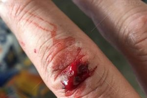 تفسير حلم الجرح من الشوك في المنام