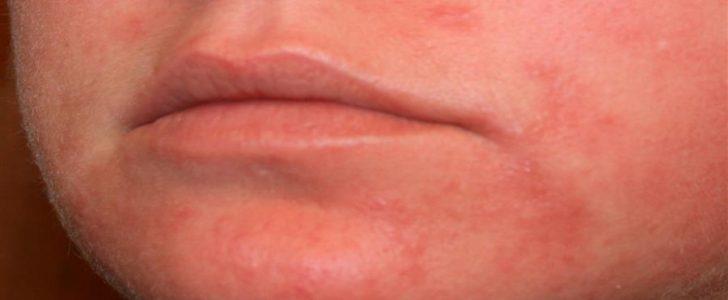 مرض الذئبة Lupus علاجه ومضاعفاته