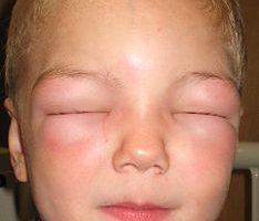 الحساسية المفرطة Anaphylaxis | أسبابها وعلاجها وأعراضها