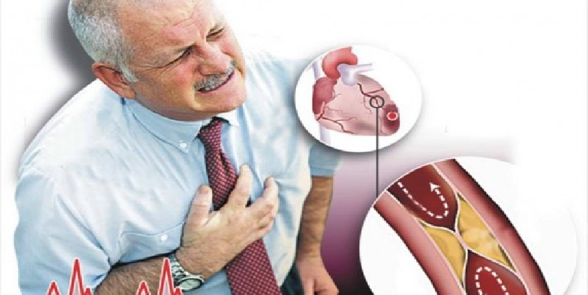 مرض الرجفان الأذيني.. الأعراض والعلاج