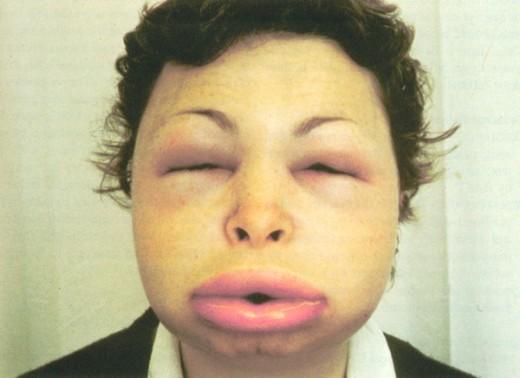 Anaphylaxis (الحساسية المفرطة)
