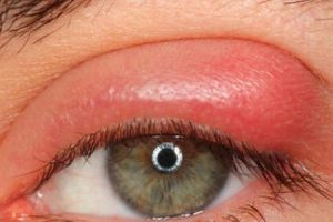 اسباب تورم جفن العين كاملة وكيفية العلاج