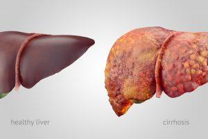 أعراض أمراض الكبد والوقاية منها