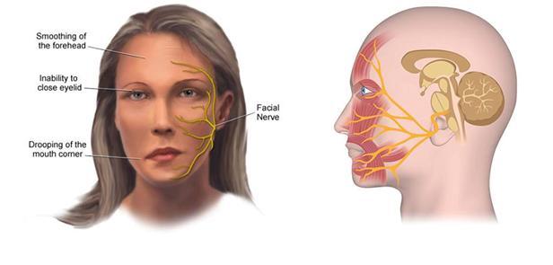شلل العصب الوجهي أعراضه وعلاجه