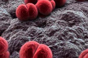 التهاب السحايا السلي | تشخيصه وعلاجه وكيفية الوقاية وطرق العدوى