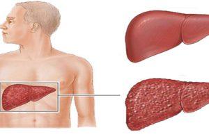 فيروس التهاب الكبد أسبابه ومضاعفاته وعلاجه وكيفية الوقاية منه