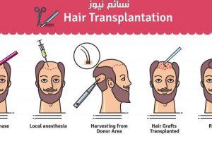 تكلفة زراعة الشعر في تركيا بالريال السعودي