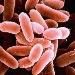 مرض الليستريا أعراضه وطرق الوقاية منه