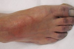 اقفار الطرف الحرج Critical limb ischemia
