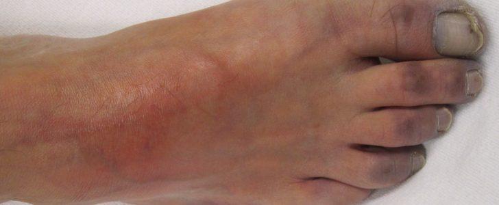 اقفار الطرف الحرج Critical limb ischemia