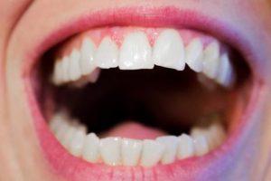 تفسير حلم الم الاسنان في المنام