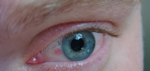 علاج ضغط العين بالأعشاب
