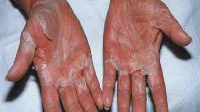 متلازمة الصدمة السامة وأعراضها