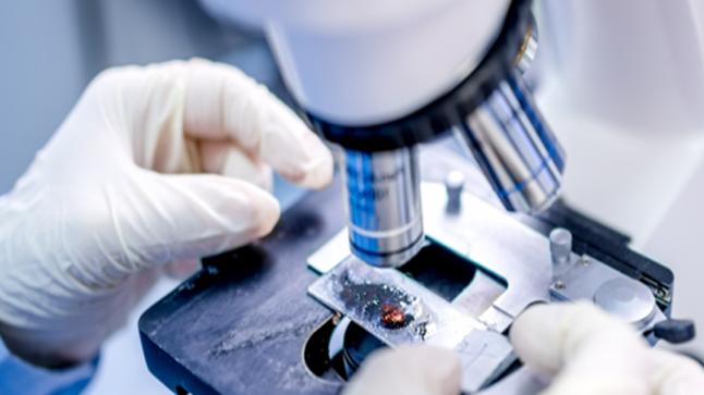 باحث مصري يساهم في تطوير تقنية لعلاج السرطان